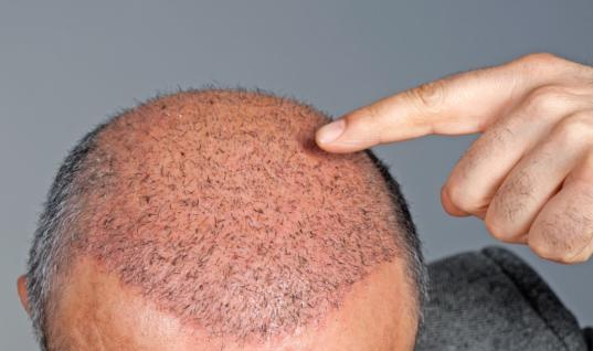 Rogue Italian Doctor Accidentally Discovers Hair Loss Cure The End Of Hairloss By 2020?, Rogue Italian Doctor Accidentally Discovers Hairloss Cure, 81 Year Old Doctor Finds A Way To Put An End To Balding, New Research Could Put An End To Baldness, Baldness Revolutionary Treatment To Be Released By 2020