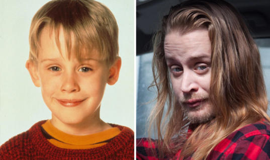 These Celebs Are Aging Horribly 20 Celebrities who Aged Badly…Really Badly, 19+ Beautiful Stars Who Have Aged Horribly, 20 Celebrities Who Aren't Aging Well, Celebrities Who Have Aged the Worst