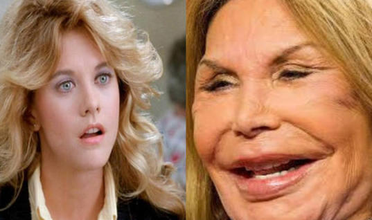 Famous Actresses Who Are Unrecognizable Stars That You Wouldn't Even Recognize Anymore, 15 Celebs Who Are Unrecognizable After Plastic Surgery, Female Stars Who You Won't Even Recognize Now